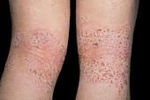 Atopic dermatitis behind the knees