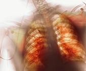 Respiratory distress syndrome,X-ray