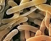 Cholera bacteria,SEM