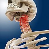 Neck pain,conceptual artwork