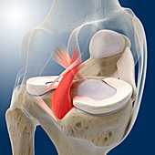 Knee pain,conceptual artwork