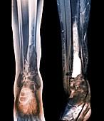 Damaged tibia,X-ray and MRI