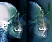 Facial plastic surgery,X-ray