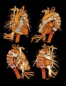 Aortic stent graft,3D CT scan