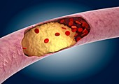 Atheromatous artery