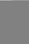 Tree Fern (Dicksonia antartica)