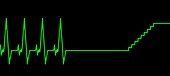 Near-death experience,heartbeat trace