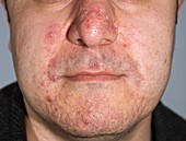Acne pimples and scars