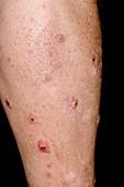Nodular prurigo on the skin