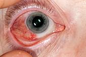 Episcleritis of the eye