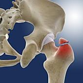 Fractured hip,artwork