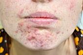 Acne vulgaris on the chin