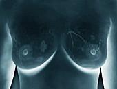Breast lumps,MRI
