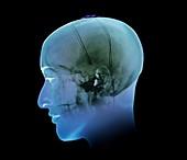 Deep brain stimulation,X-ray