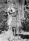 Ota Benga,Congolese pygmy