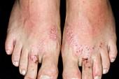 Allergic dermatitis from flip-flops