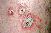 Psoriasis on the skin