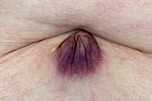 Keloid scar on the abdomen