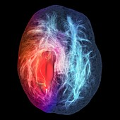 Glioblastoma brain tumour,DTI MRI scan