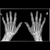 Arthritic hands,X-ray