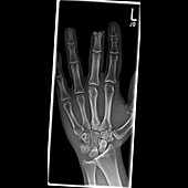Amputated finger,X-ray
