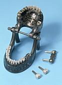 Artificial jaw,circa 1900