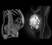 Full term foetus,CT and MRI scans