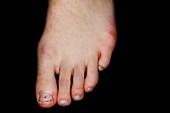 Abnormal little toe