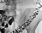 Diverticulitis,X-ray