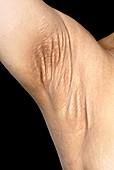Pseudoxanthoma elasticum