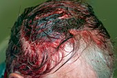 Head injury from a scaffolding pole