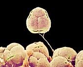Azalea pollen,SEM