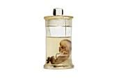 Human foetus,preserved