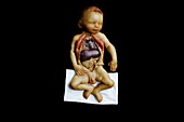 Wax model of a dissected baby,1850