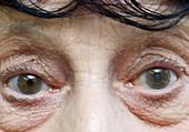 Cataract in left eye