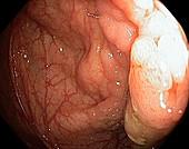 Colon adenoma,endoscope view