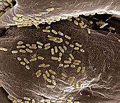 E. coli on a membrane,SEM