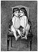 Conjoined twins,early 20th century