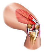 a tear of the patellar tendon