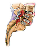 double level lumbar bone fusion