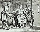 Animal-human blood transfusion,1670s
