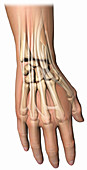a dorsal view of the right wrist
