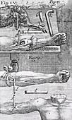 Animal-human blood transfusion,1660s