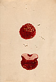 Excised breast cancer,19th-century Japan
