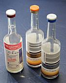 Blood bacteria cultures
