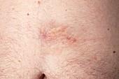 Morphea on abdomen