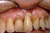 Abscess in severe gum disease
