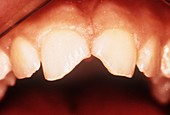 Tooth fracture,light micrograph