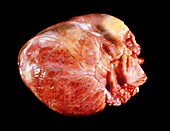 Enlarged heart in acromegaly