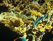 Plaque bacteria,SEM